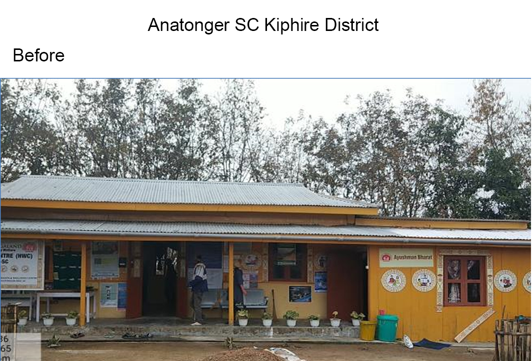 Anatonger-SC-Kiphire-District-before